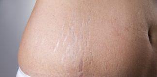 """Jeg vil gerne høre om det er godt at bruge aloe vera gel på maven for at """"undgå"""" strækmærker?"""